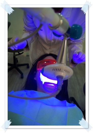 台中牙齒美白,冷光美白經驗,牙齒冷光美白推薦,牙齒冷光美白經驗,牙齒冷光美白分享,冷光牙齒美白介紹,冷光牙齒美白推薦,冷光美白牙齒,台中,牙齒美白,牙醫診所,牙醫,冷光美白,冷光牙齒美白,牙齒冷光美白,台中冷光美白,冷光美白診所,台中牙齒冷光美白,台中冷光牙齒美白,冷光美白牙齒