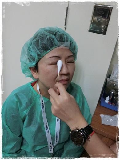 台中老花雷射分享,台中老花雷射手術,老花眼治療雷射,老花眼新的治療方法,台中眼科,台中眼科診所,陳永煌醫師,台中近視雷射