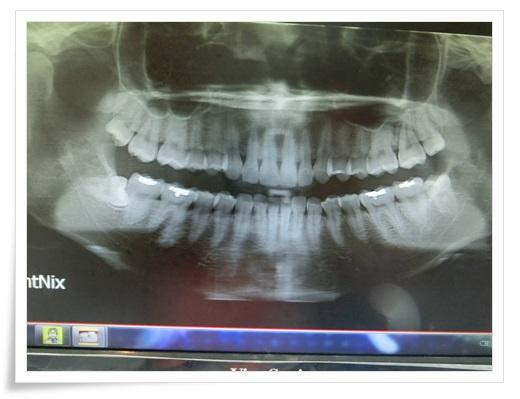 台中牙齒矯正分期,台中牙齒矯正牙醫師,中部牙齒矯正推薦,牙齒矯正,牙醫診所,牙科矯正,戴牙套,裝牙套,台中牙齒矯正,牙科矯正費用,台中裝牙套,牙齒矯正權威,牙齒矯正專科,台中牙齒矯正診所推薦,台中裝牙套診所推薦,區牙醫矯正,牙醫診所,台中牙醫權威,台中牙科醫生