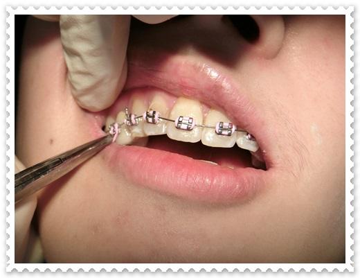 台中矯正牙齒費用,台中牙齒矯正推薦,台中牙齒矯正醫生,台中看牙齒矯正,台中牙齒矯正專科,牙齒矯正醫生推薦,台中牙齒矯正分期,牙齒矯正分期價格,台中,牙齒矯正,牙醫診所,牙科矯正,戴牙套,裝牙套,台中牙齒矯正,牙科矯正費用,台中裝牙套,牙齒矯正權威,牙齒矯正專科,台中牙齒矯正診所推薦,台中裝牙套診所推薦,區牙醫矯正,牙醫診所,台中牙醫權威,台中牙科醫生,