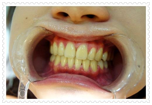 ○台中冷光牙齒美白○牙齒黃黃的到台中牙醫做牙齒冷光美白敲級厲害推薦!!
