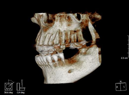 【台中牙醫醫師】感謝朋友推薦我去台中牙科做植牙,人工植牙之後,放開懷大笑也不再尷尬了~