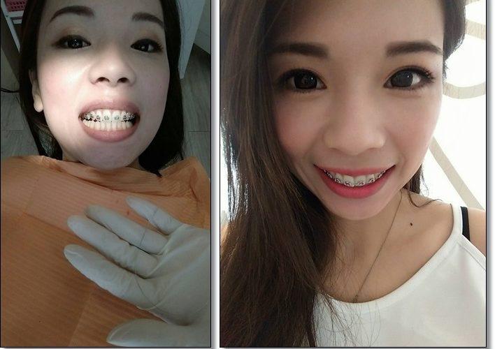 *中部牙齒矯正推薦*牙齒矯正專科*台中牙齒矯正牙醫師*牙齒矯正分期○牙齒矯正權威○台中牙齒矯正推薦○台中牙齒矯正診所名單○在給牙齒矯正權威矯正牙齒,先進的設備和技術,讓我更美麗心願有望達成~