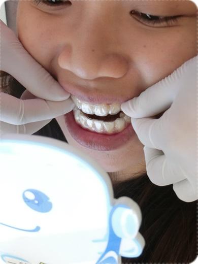 中部牙齒矯正推薦, 牙齒矯正專科, 台中牙齒矯正權威, 牙齒矯正專科, 台中裝牙套診所推薦, 北屯區牙醫矯正, 台中, 矯正, 牙醫診所, 牙醫, 台中矯正, 台中牙醫, 台中矯正價格, 台中牙科推薦, 台中推薦牙醫, 台中北屯牙醫推薦, 北屯牙醫推薦, 矯正分期, 牙醫權威, 台中牙醫師推薦, 牙科醫生推薦, 台中矯正價格查詢, 台中矯正分期, 台中牙醫權威, 台中牙科醫生