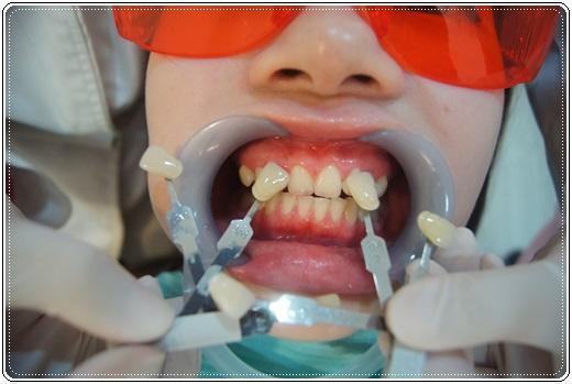 『冷光美白經驗』台中牙科牙齒冷光美白的技術真是太厲害,而且牙齒美白的價格公道,而事前的檢查準備完善,這很重要喔!