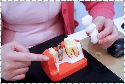 【台中植牙價格分享】查詢台中植牙診所分期推薦牙醫,在信任的牙醫診所植牙真的超有保障~
