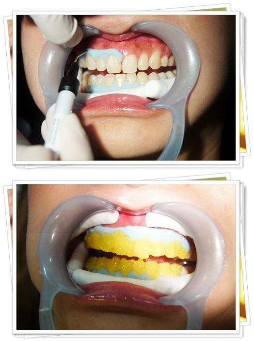 牙齒冷光美白經驗,冷光美白價格,台中牙齒美白,台中,牙齒美白,牙醫診所,牙醫,冷光美白,冷光牙齒美白,牙齒冷光美白,台中冷光美白,冷光美白診所,冷光牙齒美白推薦,牙齒冷光美白分享,冷光牙齒美白介紹,台中牙齒冷光美白,台中冷光牙齒美白