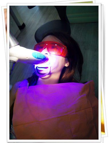 【台中牙齒美白分享】露齒微笑~在台中牙科做牙齒冷光美白,經驗和價格都超讚的~