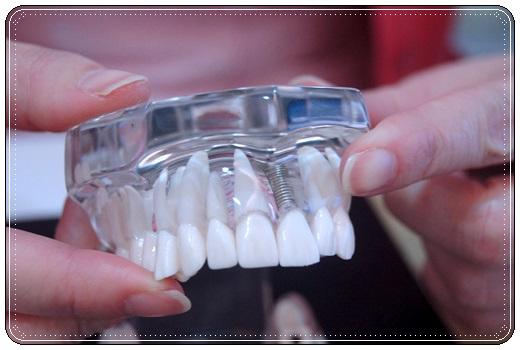 【台中植牙推薦】在台中做了相當成功的植牙,植牙診所很推薦找牙醫診所呢,術前也有很明確的諮詢~超棒的植牙診所!