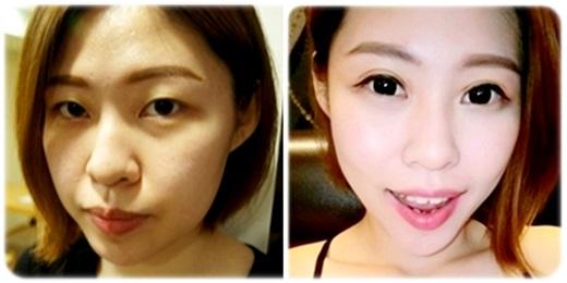 【台中割雙眼皮】台中的韓式訂書針雙眼皮推薦一家手術後消種超快,恢復也快的潘朵拉整形外科診所,醫師技術還是很有差的喔!!喜孜孜!!