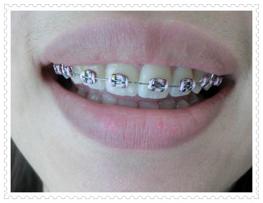 【台中看牙齒矯正】裝牙套價格查詢,牙醫診所牙齒矯正醫生超多人推薦,矯正醫師超專業又貼心~矯正器也好可愛唷~