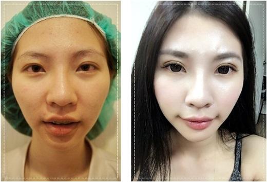 【台中雙眼皮手術】超滿意我的韓式釘書針縫雙眼皮~推薦價位合理又專業的台中潘朵拉整形外科診所做雙眼皮手術,自然又超有神!