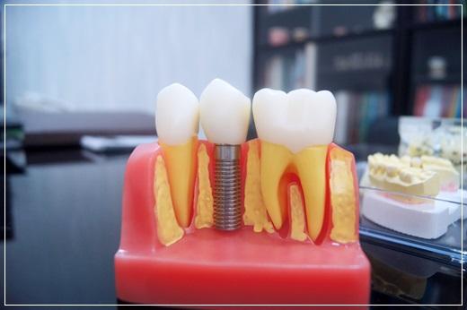 【台中植牙醫師】分享牙醫植牙經驗~是親戚推薦我的,權威醫師解說詳細而且設備也很先進,讓我恢復健康的牙齒狀態~