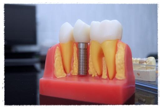 【台中植牙權威】態度親切又專業~台中牙醫超推薦!!第一次植牙覺得醫師超專業!!!!!