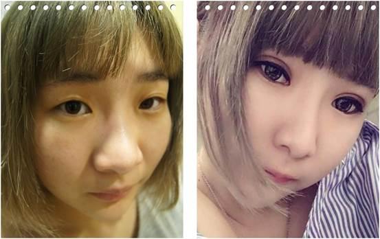 【台中整型診所】分享成功的韓式釘書機雙眼皮手術,潘朵拉整形外科診所做的雙眼皮超自然~推薦的醫美整形診所~