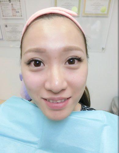 【台中醫美推薦】分享到台中整形外科診所做公主玻尿酸打淚溝豐頰,讓我看起來好有神,笑起來超甜美的