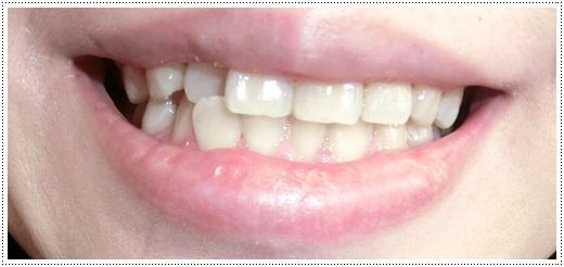 【台灣牙科診所】推薦有很多人分享經驗的台中牙醫診所做冷光美白牙齒,快速又方便,終於有一口白淨的牙齒了!