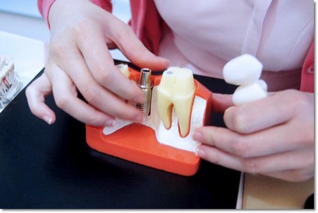 【台中植牙推薦】分享台中植牙界權威,到台中牙醫診所植牙不但價格公道,技術也相當專業呢
