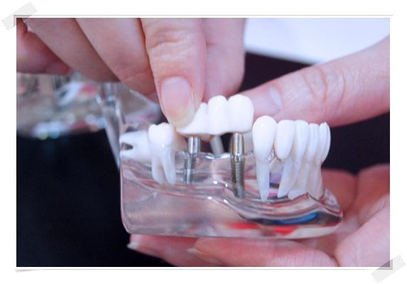 【推薦植牙】台中牙醫診所的植牙醫師還滿推薦的,植牙費用也相當合理~我的復原狀況也相當良好呢!