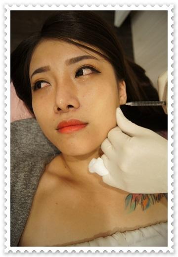 【台北醫美推薦】我在台北醫美診所了解到公主玻尿酸外,施作長效型喬雅登玻尿酸打下巴後,現在臉型線條超完美的~是價格公道的醫美診所唷