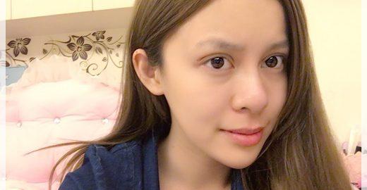 【台中雙眼皮】最新型的韓式訂書針雙眼皮,台中訂書針雙眼皮手術一點都不腫,還好的很快~好完美唷!