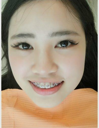 【高雄裝牙套】牙齒矯正專科診所及價格分期資訊分享※給牙齒矯正權威醫生裝牙套好放心~高雄牙醫診所超多人推薦呢!