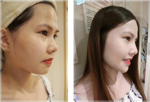 【台南醫美】到相當推薦且價位合理的台南醫美診所做微整~分享打玻尿酸及肉毒微整型心得,讓我的臉型比例自然又完美~