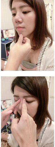 【台南玻尿酸山根】分享到台南醫美診所詢問價格及長效型喬雅登打下巴資訊,就連公主玻尿酸療程也很專業,相當有品質!