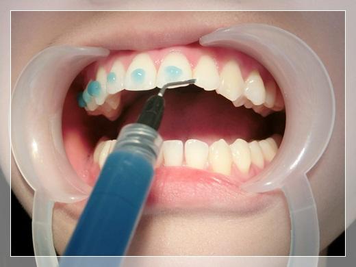 【台南裝牙套診所推薦】到台南牙齒矯正專科裝牙套評價比較!除了牙醫師很專業外,戴牙套的矯正器還是粉色的唷~女孩兒們都很推薦呀!