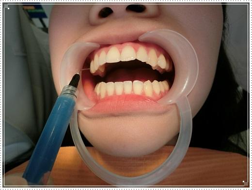 【牙醫診所】台南牙齒診所的裝牙套矯正費用及專業牙醫師評論分享,牙醫矯正醫師動作好溫柔,價格也很合理呢!