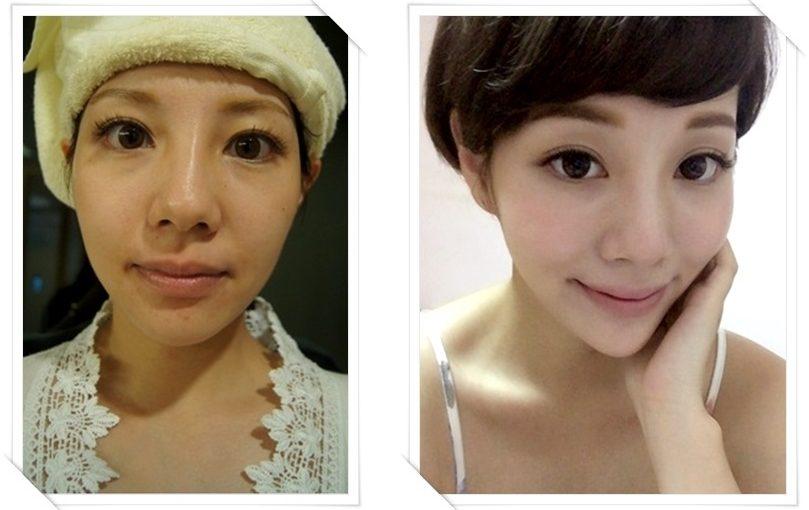 【台南舒顏萃比較】台南醫美診所的舒顏萃Sculptra及3D聚左旋乳酸童顏針評價超好,音波拉皮的效果也讓臉型更好看了!