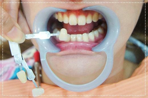 【台北牙齒冷光美白】推薦分享台北牙醫診所做冷光牙齒美白~價格公道醫師細心,還我一口貝齒~