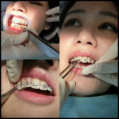 【台北】※牙齒矯正價格※愛美日記※在台北牙醫診所做牙齒矯正我好推薦啊~