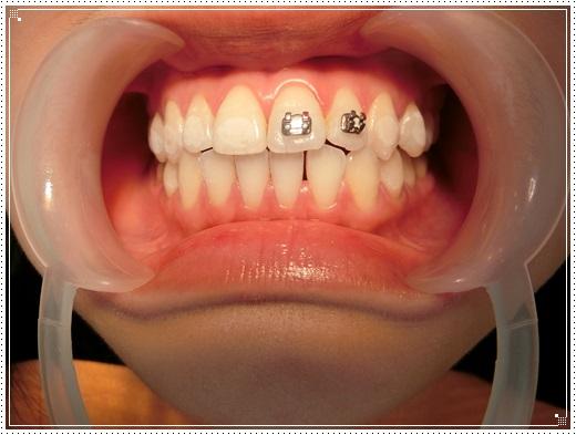 【台北牙齒矯正牙醫師】台北牙齒診所的裝牙套矯正費用及專業牙醫師分享,醫師動作好溫柔,粉色系的矯正器超可愛的!
