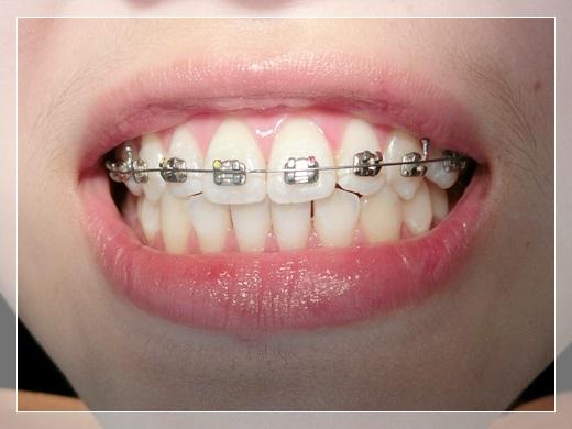 【台北牙齒矯正推薦】推薦到台北牙齒矯正專科裝牙套,矯正器是粉色的~超可愛!!醫師人也超專業超貼心的~~~