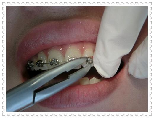 【台北牙齒矯正推薦】台北裝牙套價格查詢台北牙醫診所牙齒矯正醫生超推薦,矯正醫師超專業又貼心~矯正器也好可愛唷!