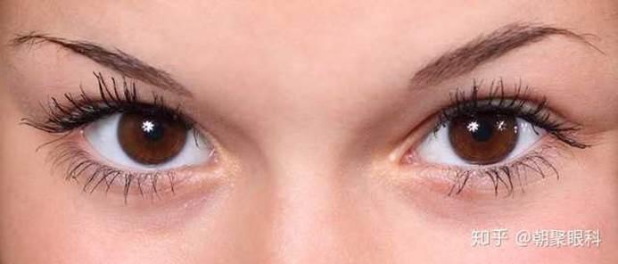 【台中眼科】近視雷射手術前該知道什麼?最新眼科診所技術推薦報你知!