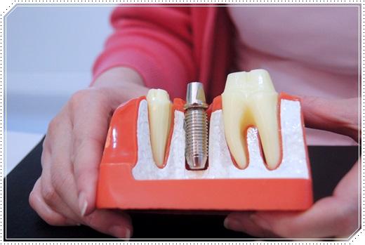 植牙診所分期,植牙分期價格,台中植牙價格分享,台中,植牙,植牙,台中植牙費用,台中植牙推薦,台中植牙價格,植牙費用,植牙推薦,台中植牙價格,台中植牙權威,台中植牙,台中植牙診所,台中植牙價錢,台中植牙醫師,台中植牙價格查詢,台中植牙分期