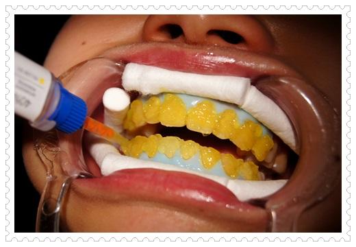 台中,牙齒美白,牙醫診所,牙醫,冷光美白,冷光牙齒美白,牙齒冷光美白,台中冷光美白,台中牙齒美白,冷光美白診所,冷光牙齒美白推薦,牙齒冷光美白分享,冷光牙齒美白介紹,牙齒冷光美白推薦,台中牙齒冷光美白,牙齒冷光美白分享,台中冷光牙齒美白,冷光牙齒美白推薦,冷光美白牙齒,牙齒冷光美白分享,冷光牙齒美白推薦,牙齒冷光美白推薦,牙齒的