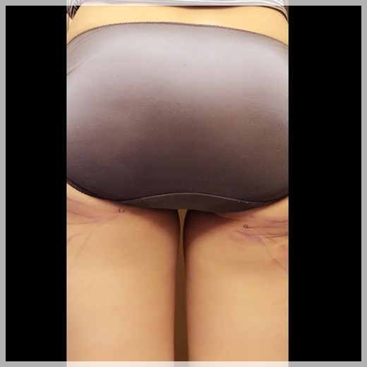 台中自體脂肪移植,台中大腿抽脂,自體脂肪豐胸,台中自體隆乳,台中自體脂肪抽脂補臉,自體脂肪抽脂移植推薦,自體抽脂,台中自體脂肪豐胸,台中,推薦,自體脂肪,自體抽脂,自體脂肪移植,自體脂肪豐頰,自體脂肪隆乳