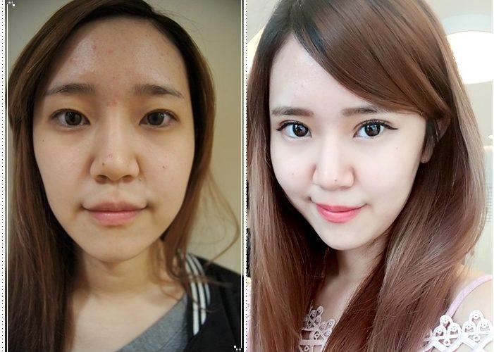 【台中雙眼皮整型】混血正咩誕生!!我的雙眼皮超自然又很電~~韓式釘書針雙眼皮推薦去潘朵拉整形外科診所做喔~~