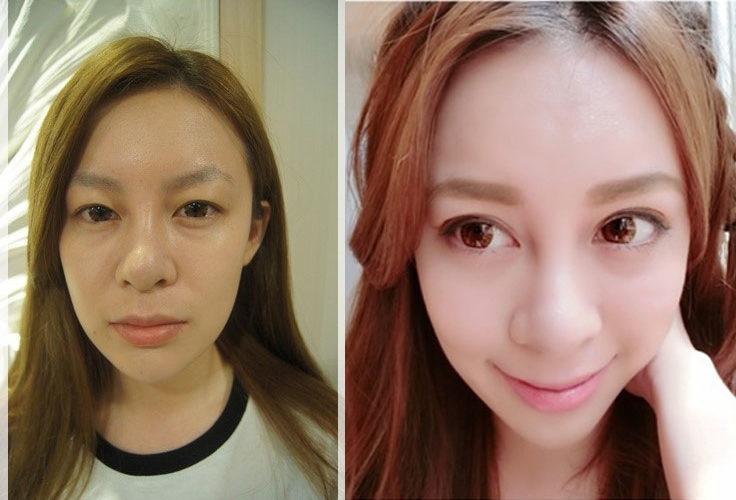 『台中整型診所推薦』台中潘朵拉何宗融院長割的最新型的韓式雙眼皮,一點都不腫,還好的很快~好完美唷!