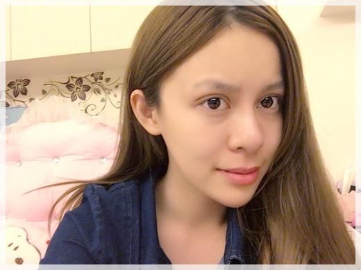 『台中縫雙眼皮診所』最新型的韓式縫雙眼皮,潘朵拉何宗融院長縫訂書針雙眼皮一點都不腫,還好得很快~好完美唷!