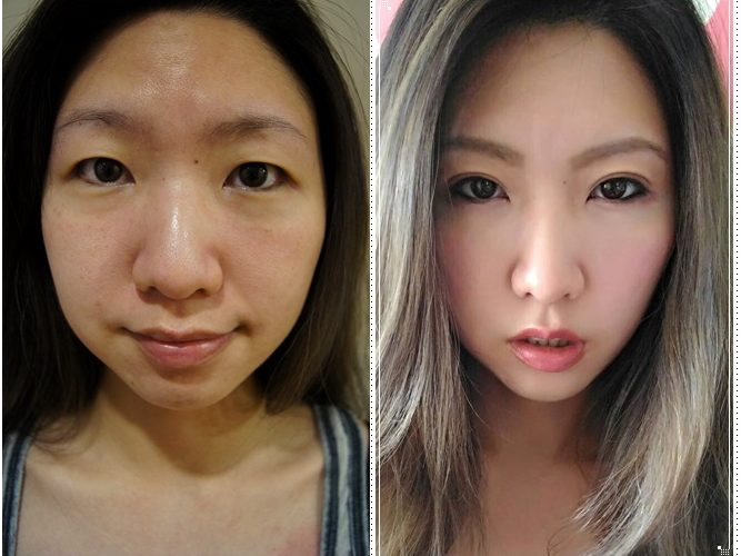 【台中雙眼皮手術】霸氣雙眼皮整型電眼~~潘朵拉整形外科診所的韓式釘書機雙眼皮價位合理,從無力小眼變成霸氣電眼~~