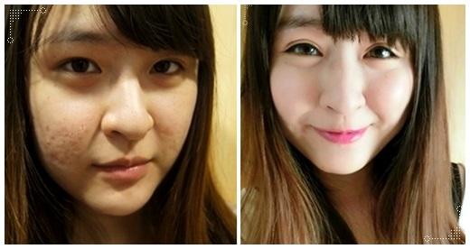 【台中雙眼皮】潘朵拉整形外科診所做韓式釘書針雙眼皮推薦,整個呆呆的眼睛變得超會電眼!