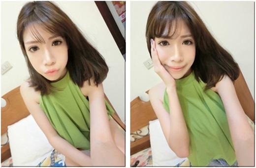 【台中割雙眼皮】分享台中潘朵拉整形外科診所施作韓式釘書針雙眼皮手術~我的眼睛變好有神好放電!感謝朋友的推薦~