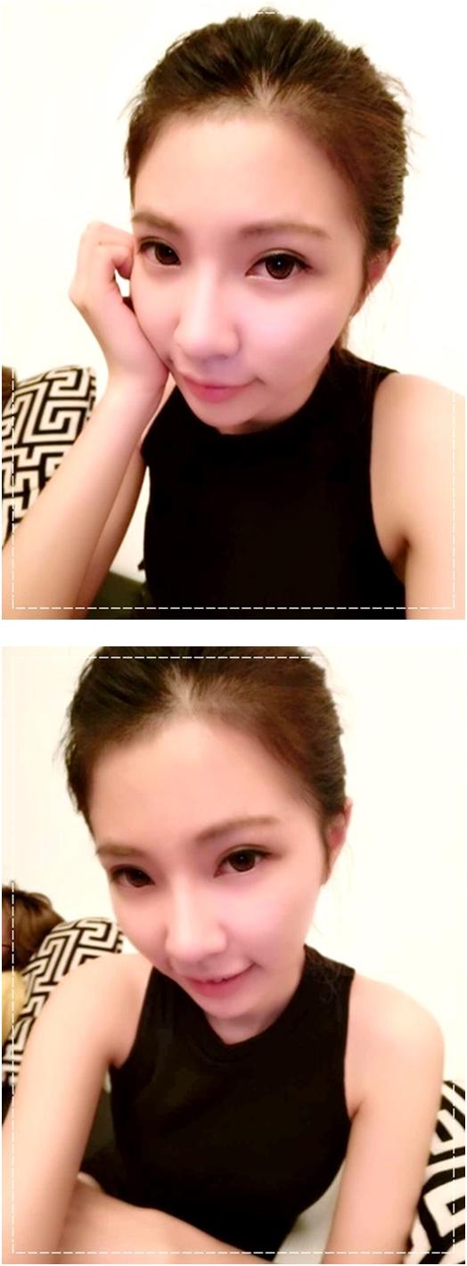 【韓式釘書針雙眼皮】推薦價位合理又專業的台中整形外科診所做雙眼皮手術,超滿意我的韓式釘書針縫雙眼皮,自然又超有神!