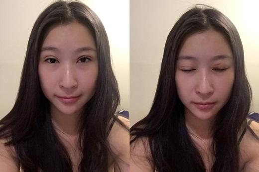 【台中縫雙眼皮推薦】想要擁有美美的韓式雙眼皮嗎※這間整形外科縫雙眼皮的技術超自然呐※